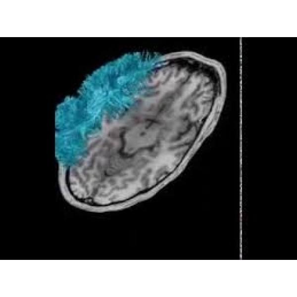 Boa Psiquiatria para Internação no Cambuci - Clínica Psiquiátrica na Zona Leste