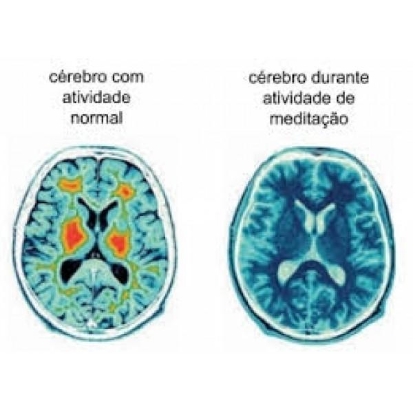 Como Fazer para Vencer a Depressão em São Lourenço da Serra - Como Lidar com a Depressão