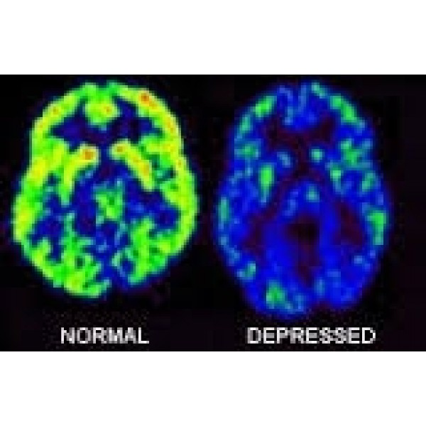 Como Vencer a Depressão no Jardim São Luiz - Como Tratar Depressão