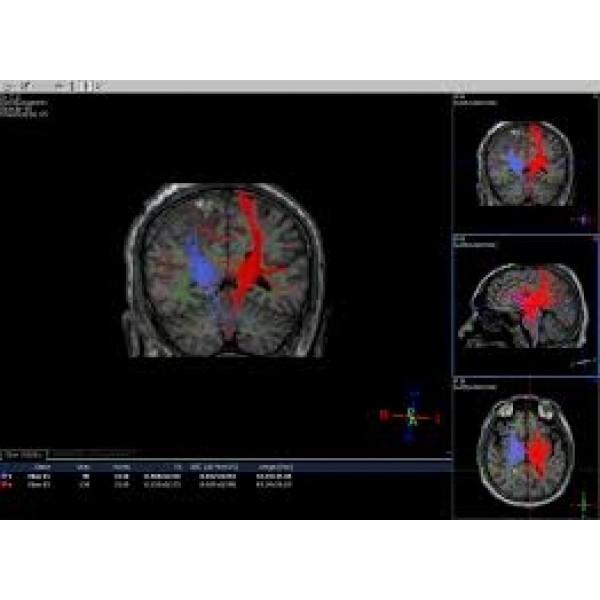 Melhor Opção de Psiquiatria para Internação em Barueri - Clínica de Psiquiatria