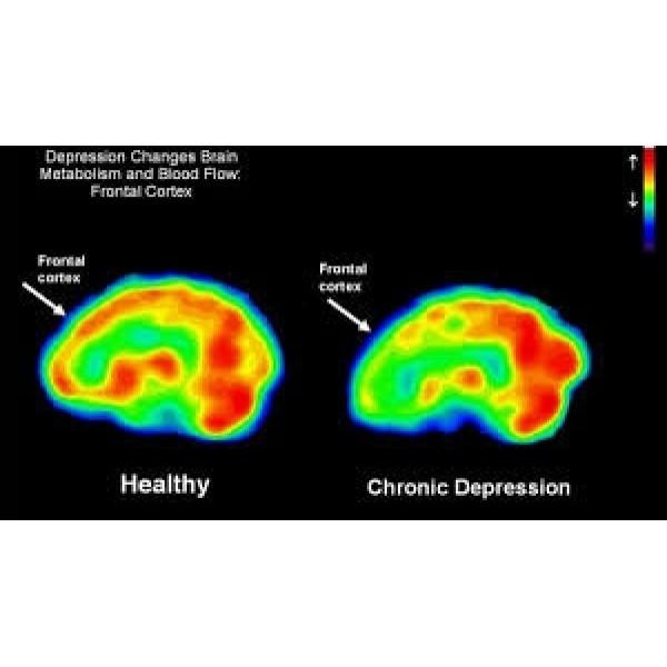 Psiquiatra Valores Baixos na Aclimação - Clínica Psiquiátrica para Depressão