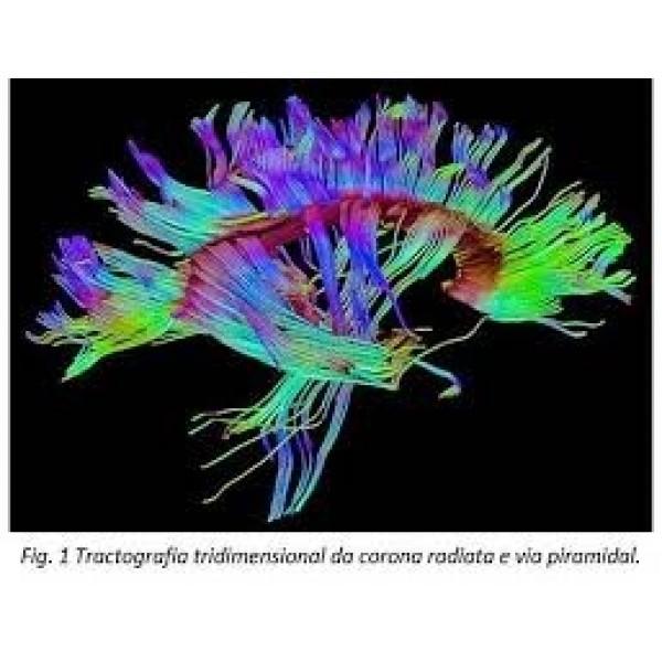 Psiquiatria para Internação Valor Baixo em Pirituba - Clínica Psiquiátrica para Adultos