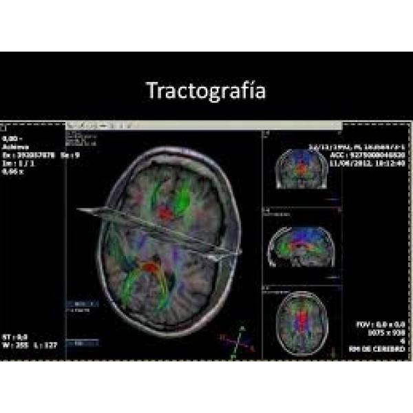 Psiquiatrias para Internação com Melhor Preço no Jaraguá - Clínica Psiquiátrica SP