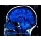 Clínica para depressão valores baixos em Aricanduva