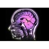 Clínica psiquiátrica para depressão melhores preços no Jaguaré