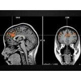 Clínica psiquiátrica para depressão preços no Brooklin