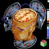 Clínicas psiquiátricas para depressão onde achar no Itaim Bibi