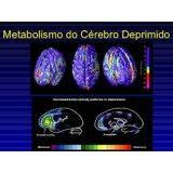 Clínicas psiquiátricas para depressão valor no Jaraguá