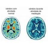 Como fazer para vencer a depressão em Interlagos