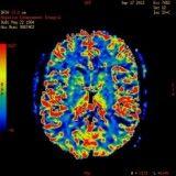 Tratamento para depressão com menores valores em Itaquera